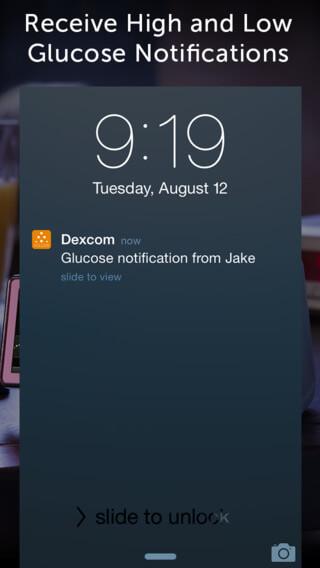 dexcom 03